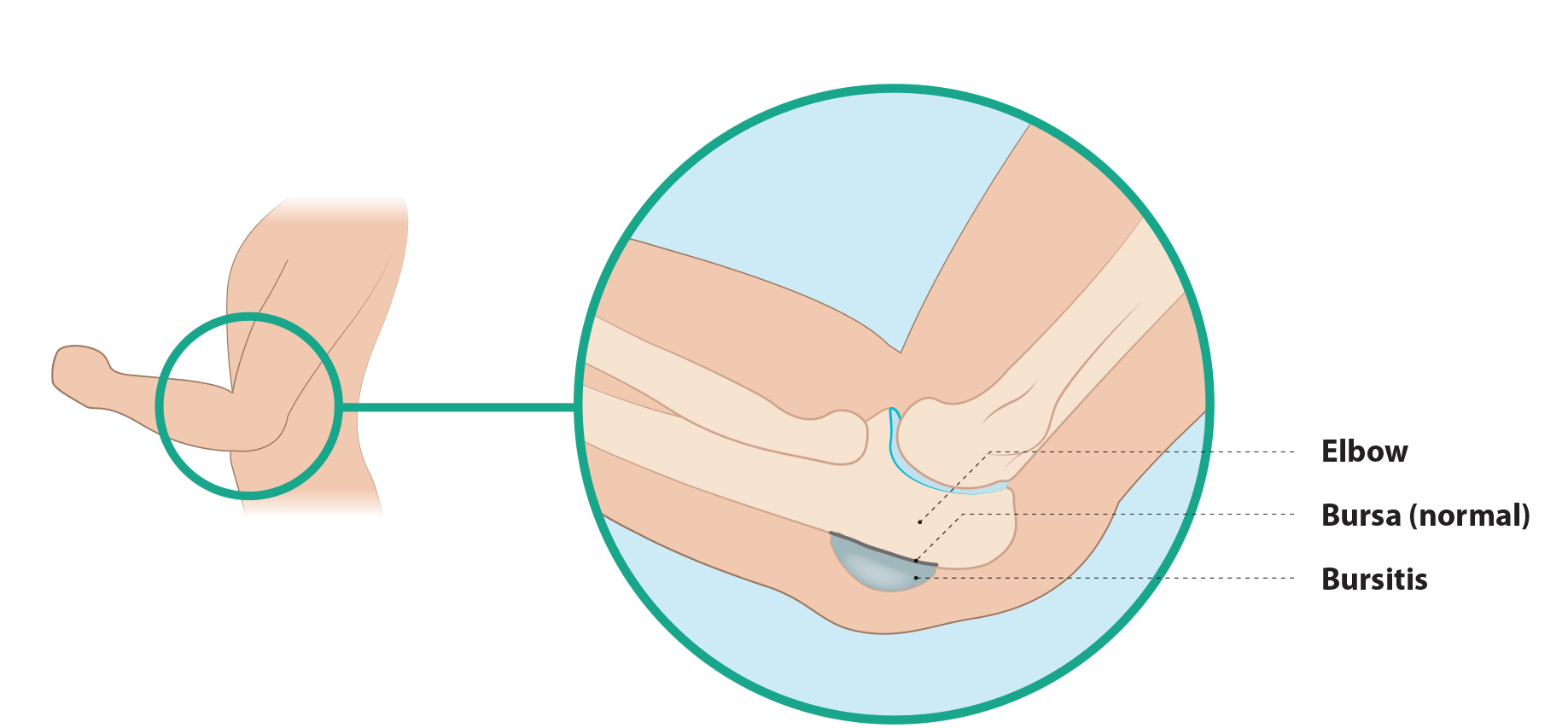 Bursitis-elleboog-2.jpg