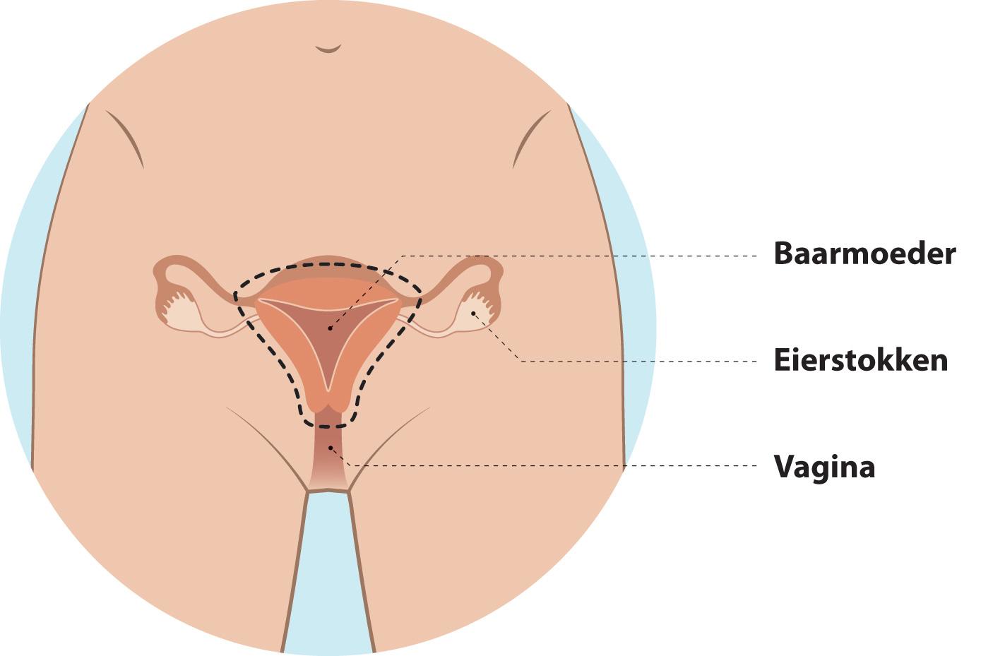 Irritatie van de vagina