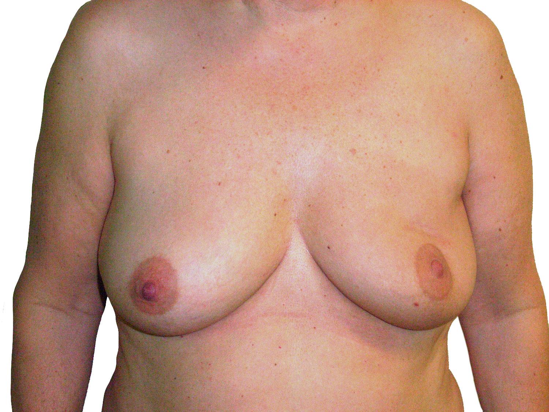 borstkanker_foto_1.jpg