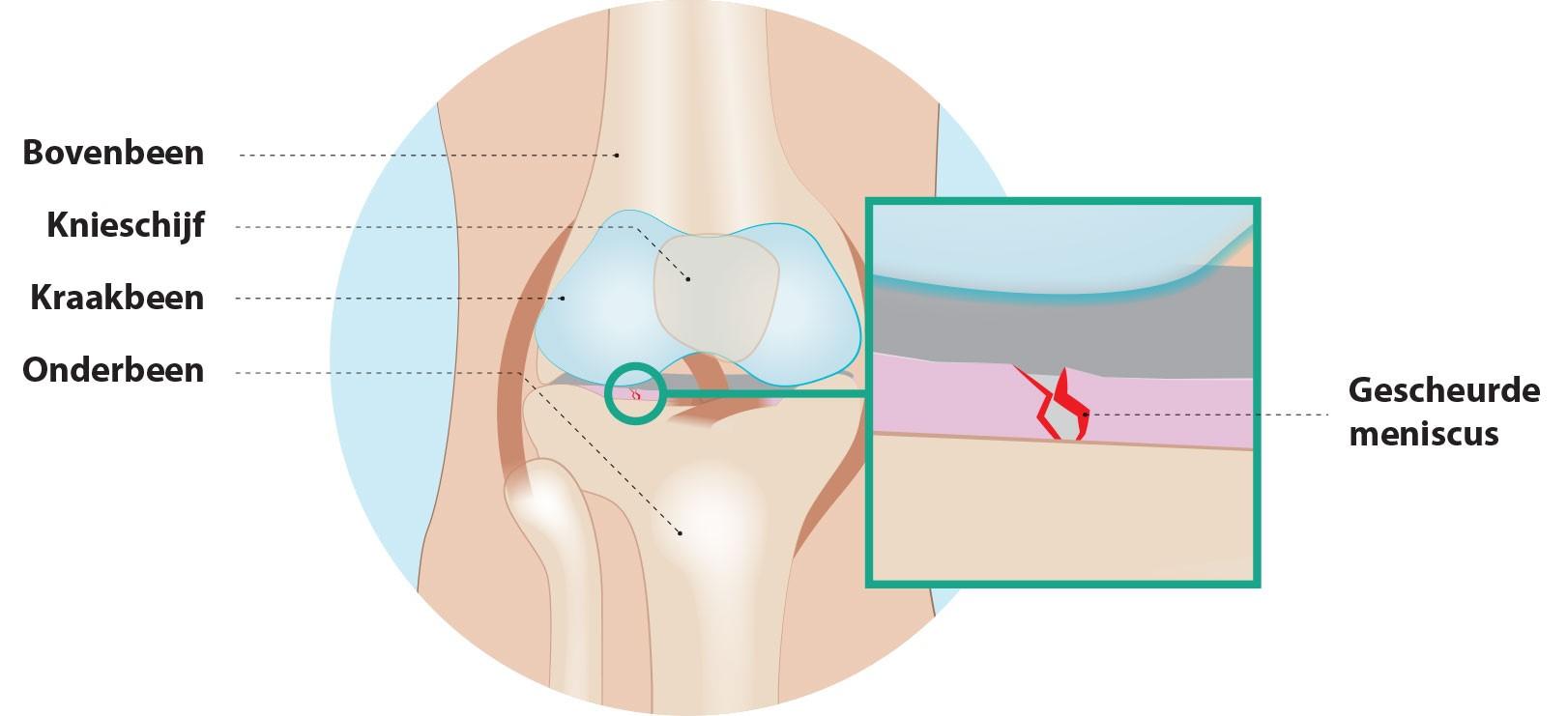 meniscus-2.jpg
